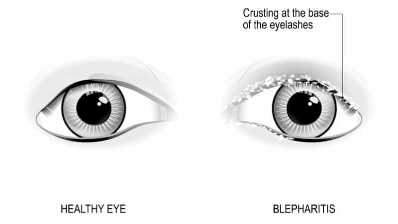Blepharitis diagram