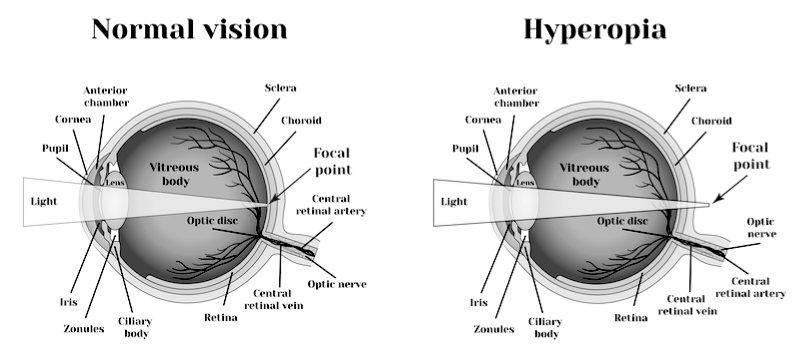 Hyperopia Diagram