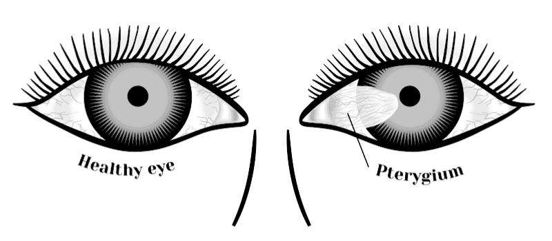 pterygium diagram
