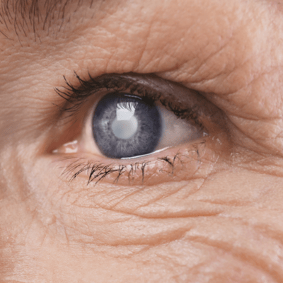 Cataract Surgery Page
